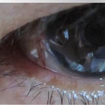 Oculoplástica